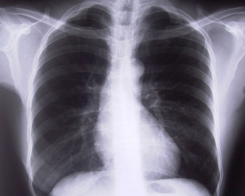 NSW detects three black lung cases
