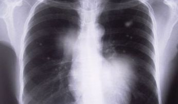 NSW coal mine worker found to have black lung