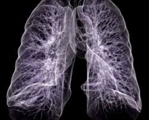 More black lung deaths expected despite lower longwall dust levels