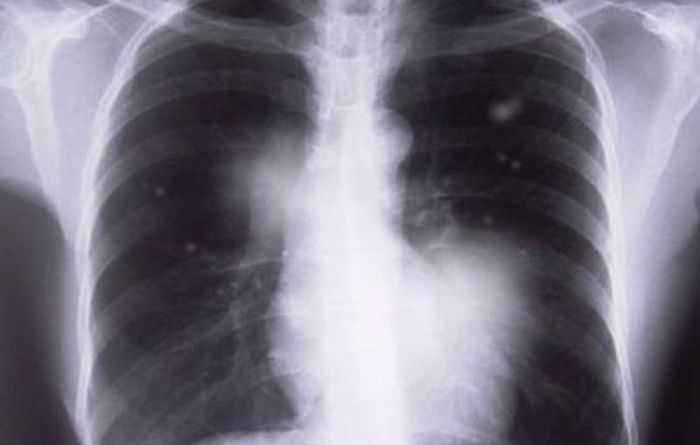 New case of mixed dust pneumoconiosis identified in NSW