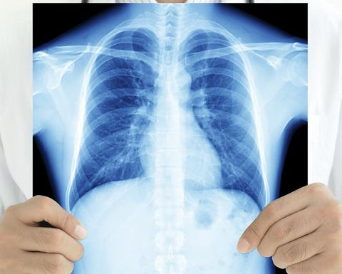 Free lung health checks for retired workers in Queensland