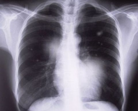 Black lung group recommends workers' comp